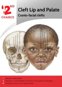 Cleft lip and palate. Crano facial clefts.