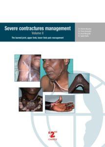 Severe Contractures Management. Vol II
