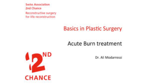acute_burn_treatment