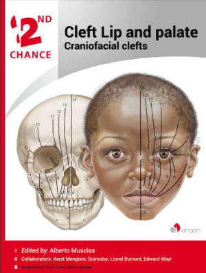 Cleft Lip and palate | Craniofacial clefts