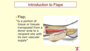 introduction to flap surgery