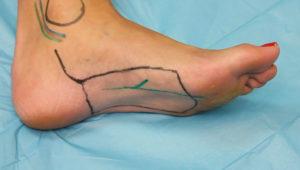 lower_medial_plantar-artery