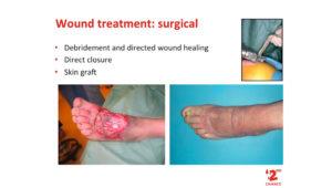 Wound treatment
