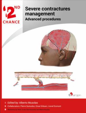 Severe Contractures Management | Advanced procedures