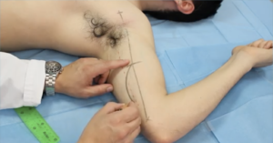 Brachial Medial arm flap