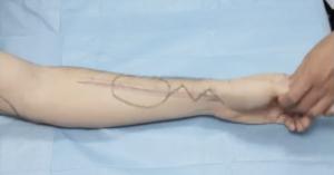 Forearm radial artery flap
