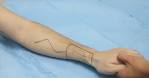 Proximally based radial artery perforator flap