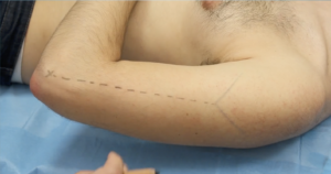 Lateral arm flap